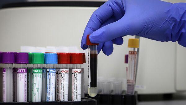 Тестирование на антитела к коронавирусу
